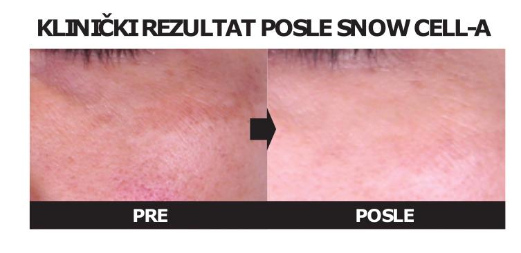 Genosys Snow Cell tretman - Rejuva Beograd